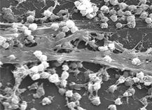 ¿Qué son, en qué afectan y qué puede provocar la presencia de biofilms en la cocina?