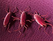 Listeria monocytogenes, gestión de la tolerancia a los desinfectantes utilizados habitualmente